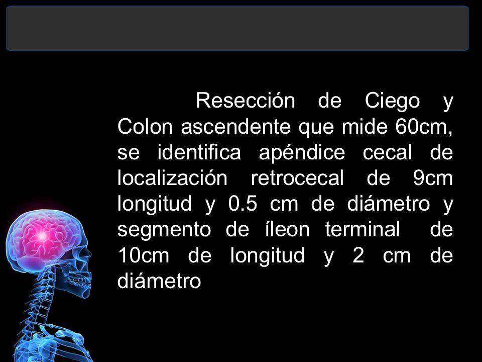 Resección de Ciego y Colon ascendente que mide 60cm, se identifica apéndice cecal de localización retrocecal de 9cm longitud y 0.5 cm de diámetro y segmento de íleon terminal de 10cm de longitud y 2 cm de diámetro