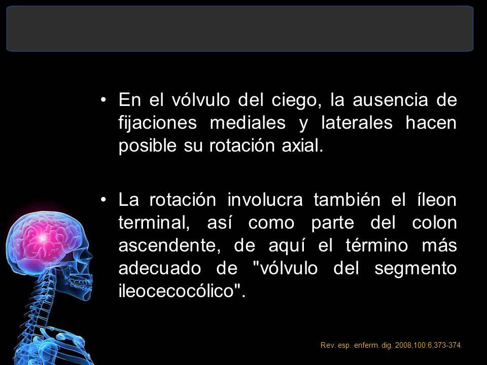 En el vólvulo del ciego, la ausencia de fijaciones mediales y laterales hacen posible su rotación axial.
