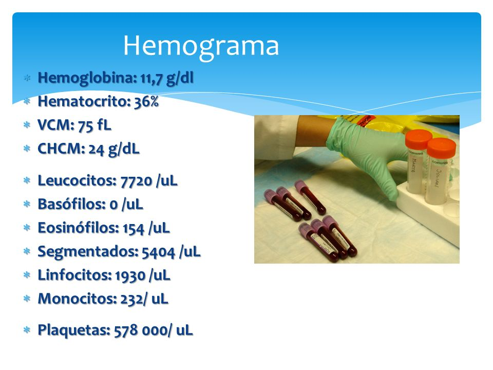 Hemograma Hemoglobina: 11,7 g/dl Hematocrito: 36% VCM: 75 fL