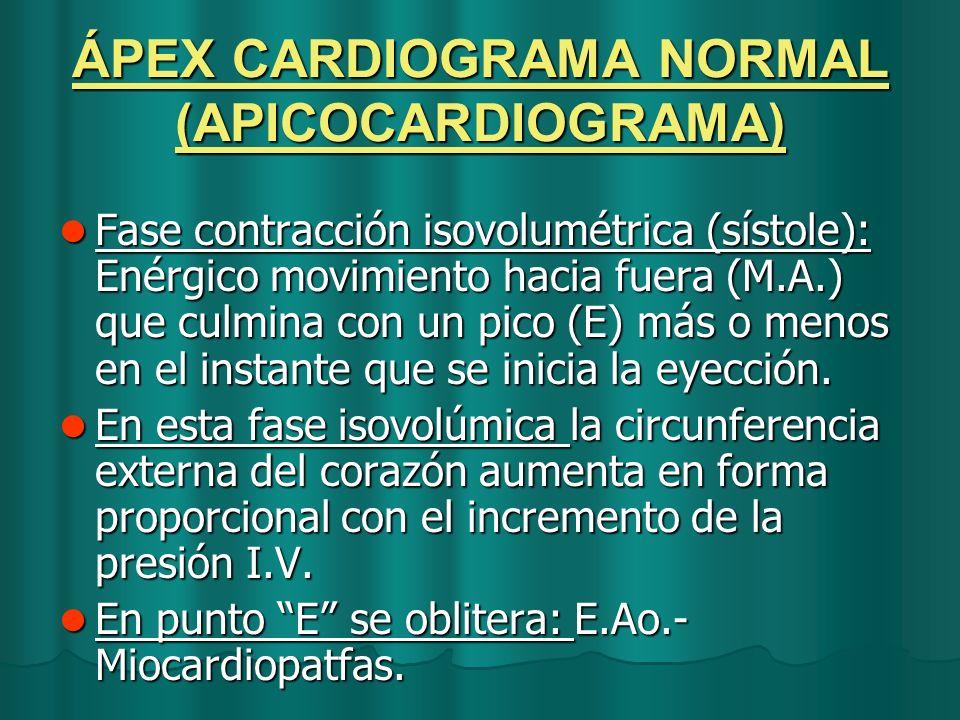 ÁPEX CARDIOGRAMA NORMAL (APICOCARDIOGRAMA)