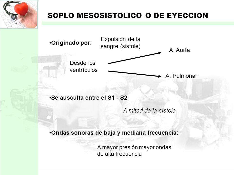 Expulsión de la sangre (sistole)
