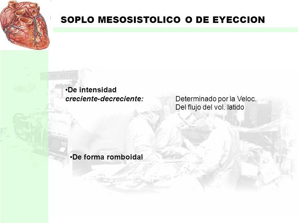 SOPLO MESOSISTOLICO O DE EYECCION