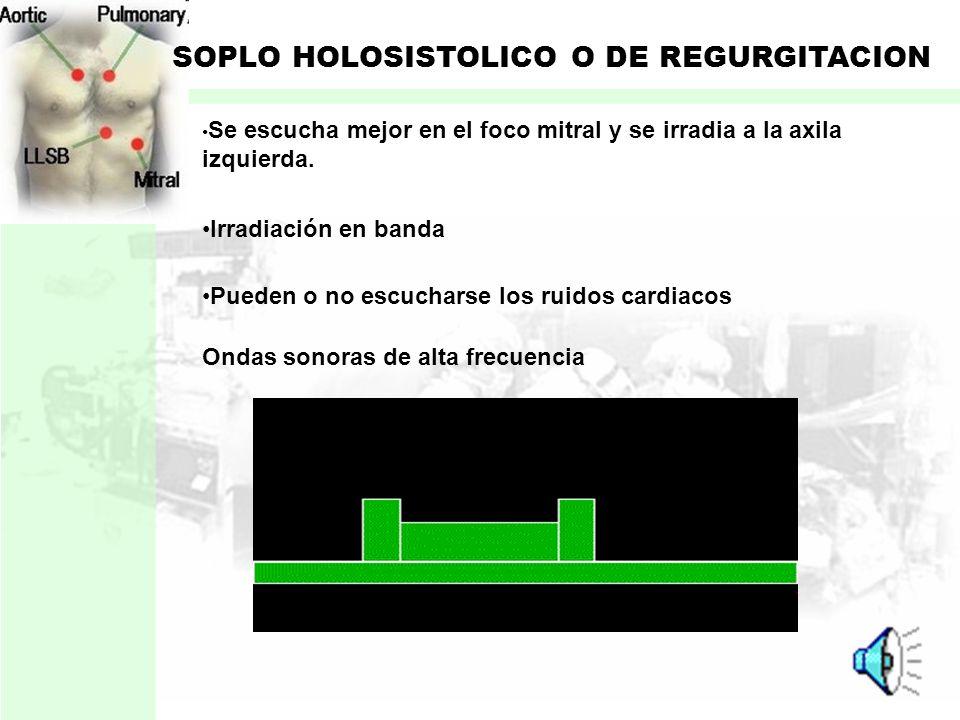 SOPLO HOLOSISTOLICO O DE REGURGITACION