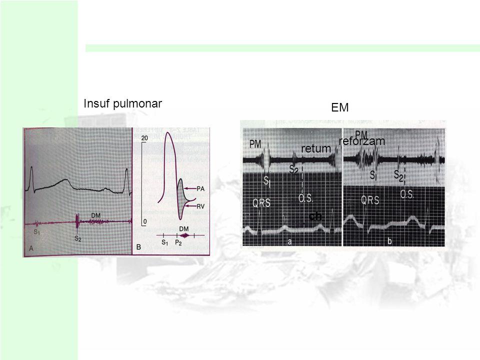 Insuf pulmonar EM reforzam retum ch