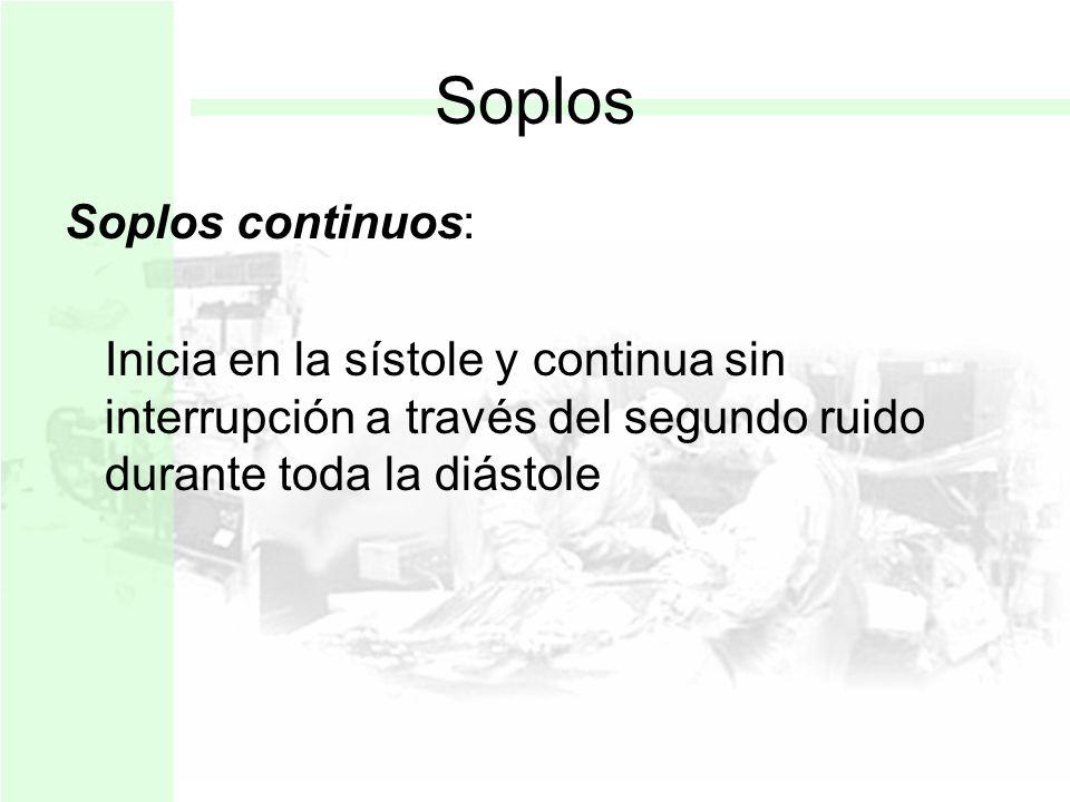 Soplos Soplos continuos: Inicia en la sístole y continua sin interrupción a través del segundo ruido durante toda la diástole