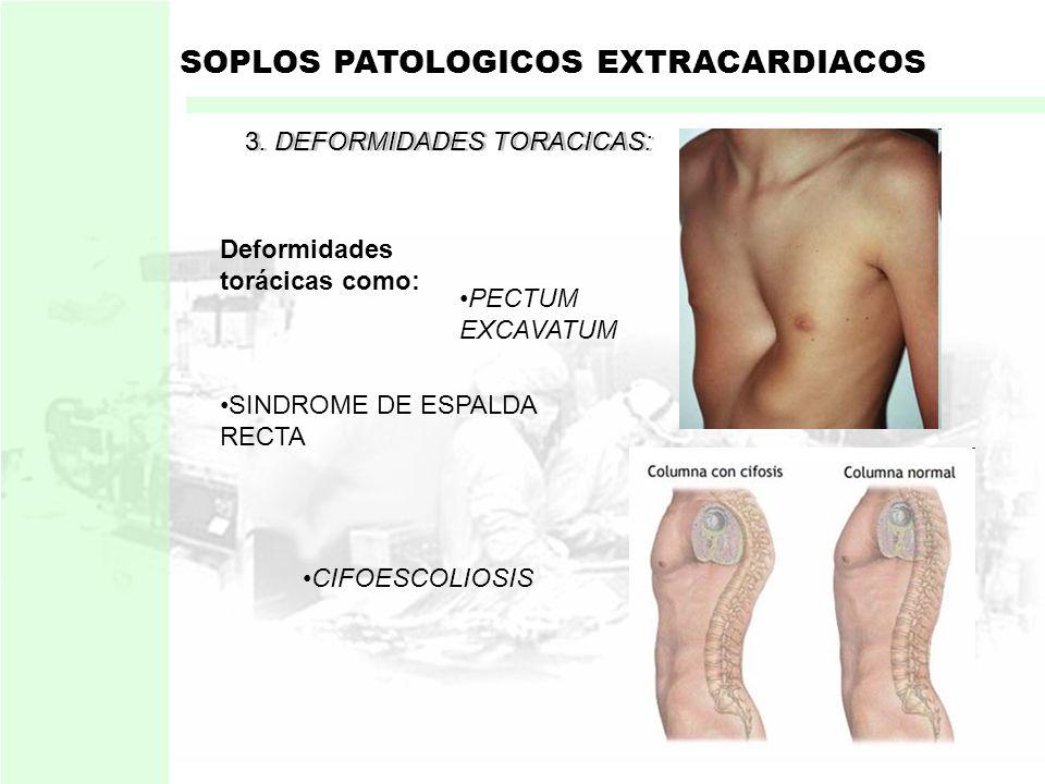 SOPLOS PATOLOGICOS EXTRACARDIACOS