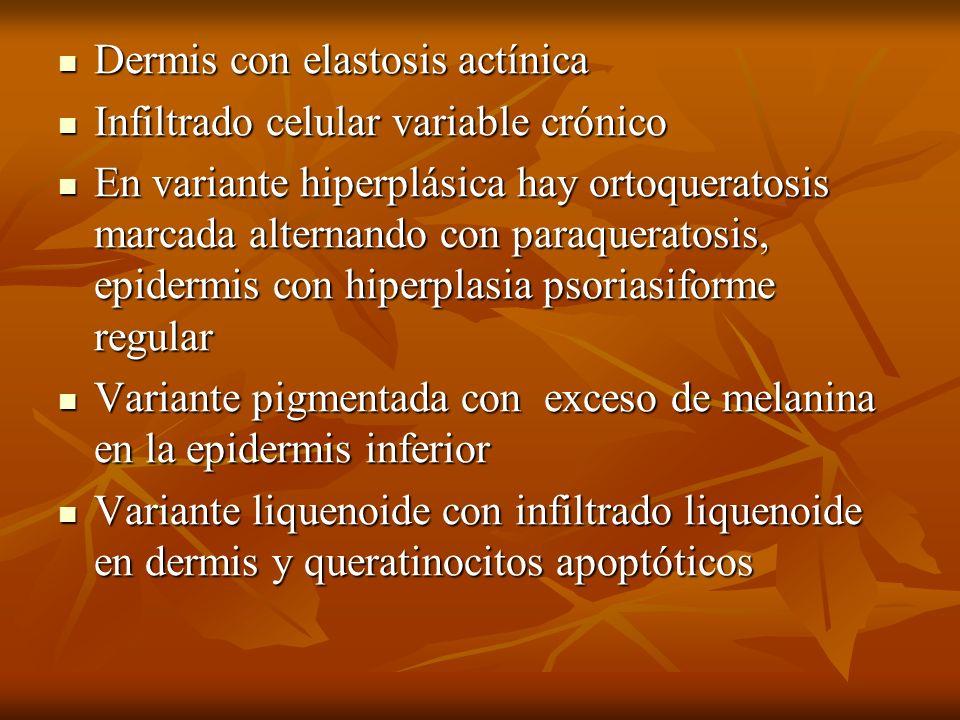 Dermis con elastosis actínica
