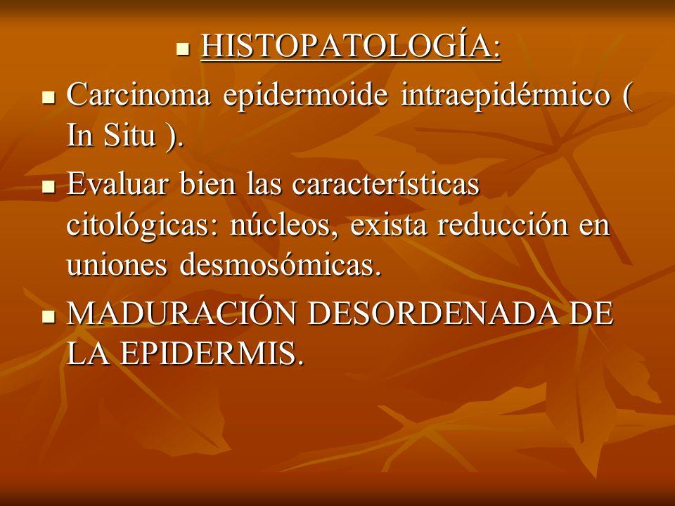 HISTOPATOLOGÍA: Carcinoma epidermoide intraepidérmico ( In Situ ).