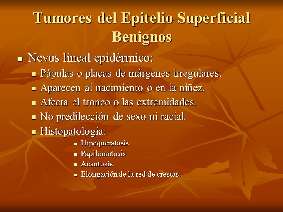 Tumores del Epitelio Superficial Benignos