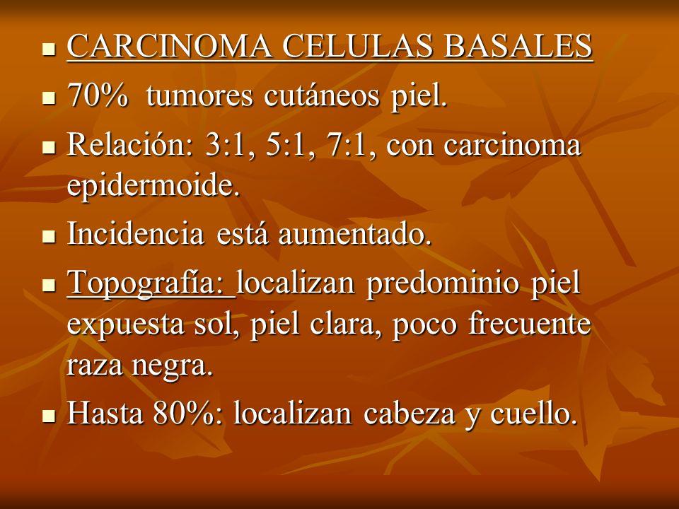 CARCINOMA CELULAS BASALES