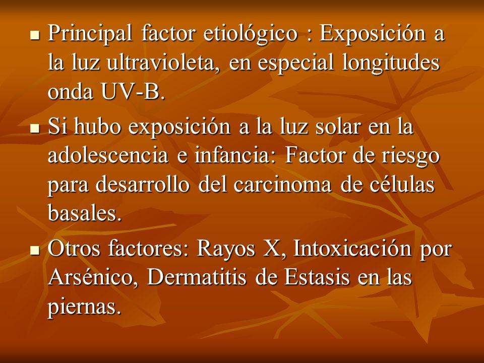 Principal factor etiológico : Exposición a la luz ultravioleta, en especial longitudes onda UV-B.