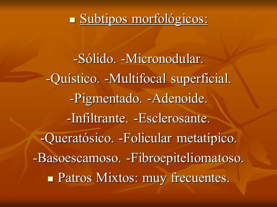 Subtipos morfológicos: -Sólido. -Micronodular.