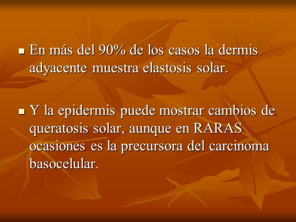 En más del 90% de los casos la dermis adyacente muestra elastosis solar.