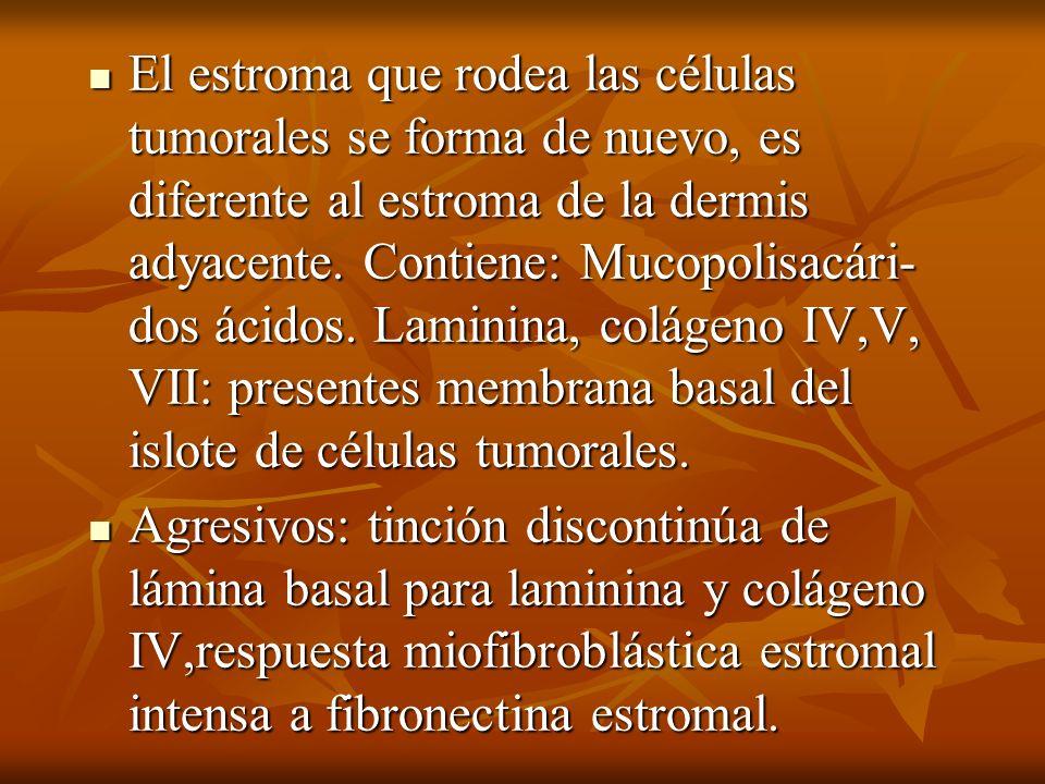 El estroma que rodea las células tumorales se forma de nuevo, es diferente al estroma de la dermis adyacente. Contiene: Mucopolisacári- dos ácidos. Laminina, colágeno IV,V, VII: presentes membrana basal del islote de células tumorales.