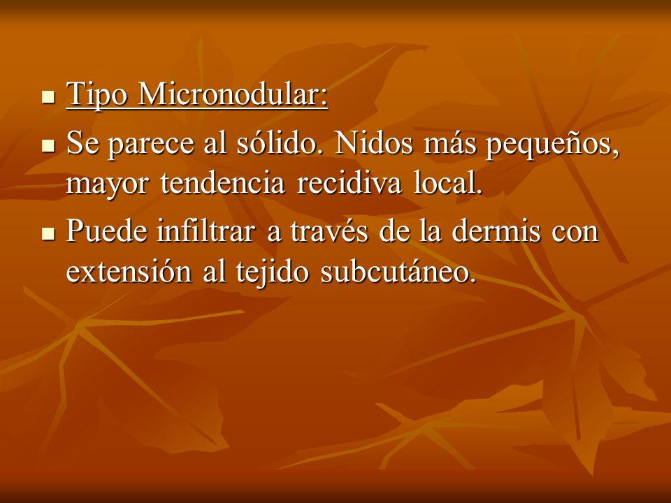 Tipo Micronodular: Se parece al sólido. Nidos más pequeños, mayor tendencia recidiva local.