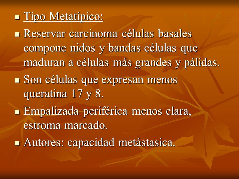 Tipo Metatípico:Reservar carcinoma células basales compone nidos y bandas células que maduran a células más grandes y pálidas.