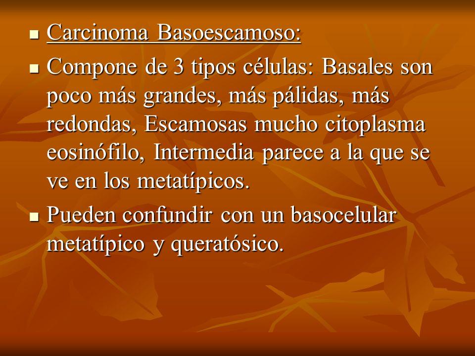 Carcinoma Basoescamoso:
