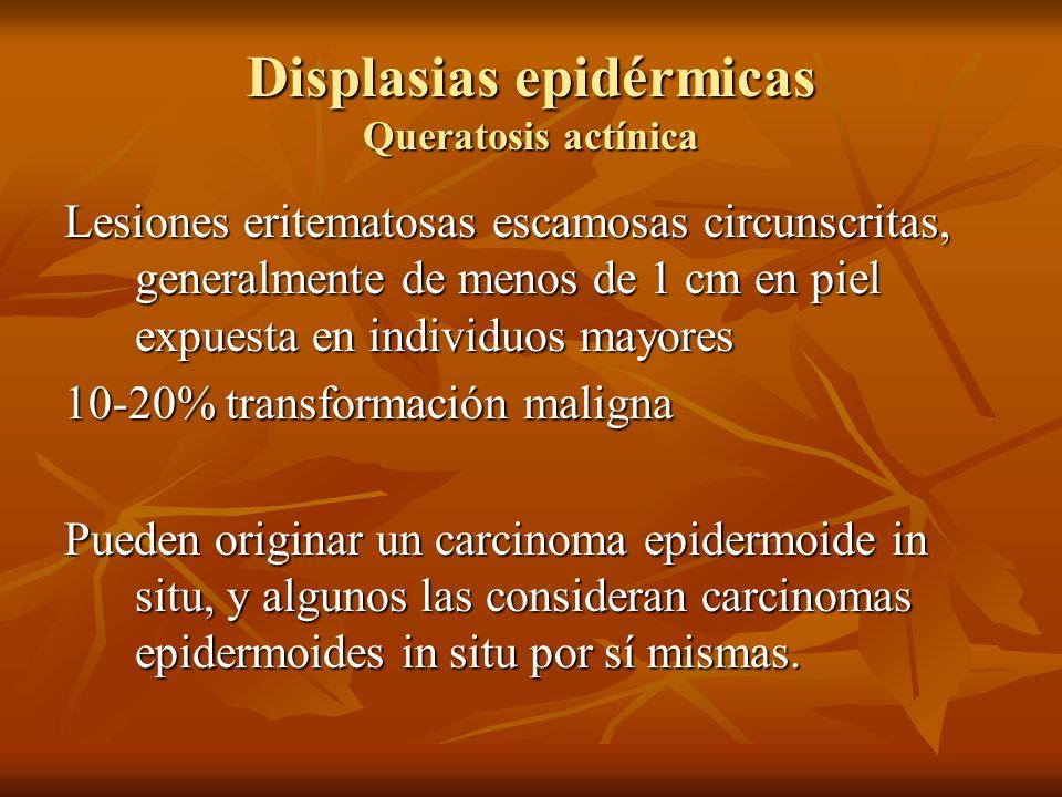 Displasias epidérmicas Queratosis actínica