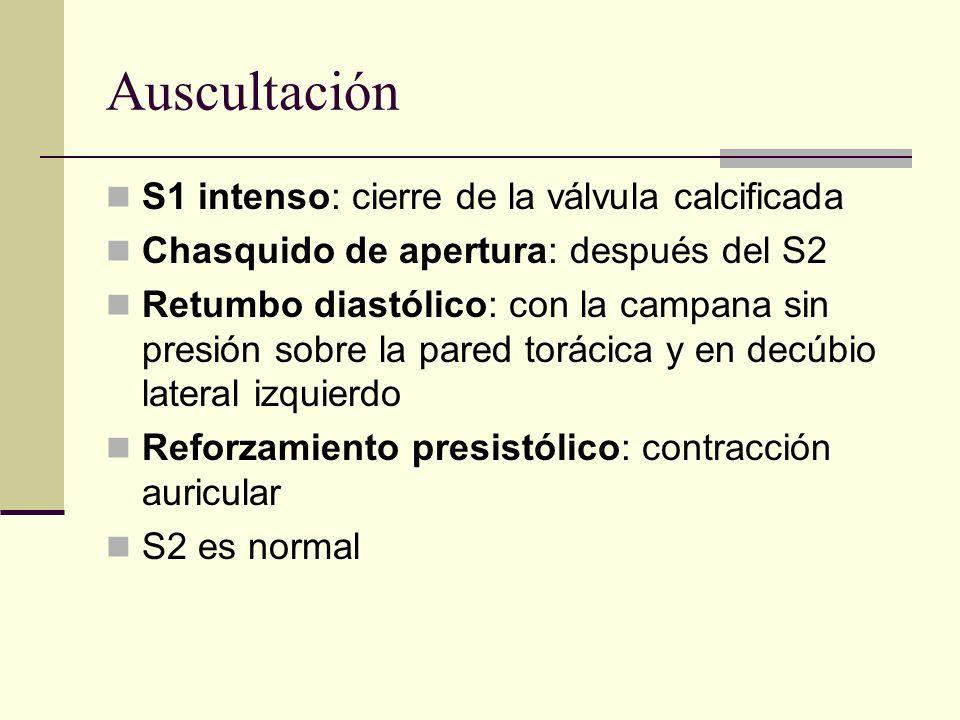 Auscultación S1 intenso: cierre de la válvula calcificada