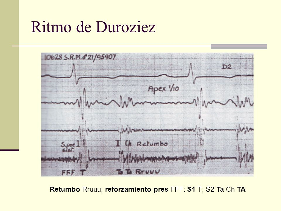 Ritmo de Duroziez Retumbo Rruuu; reforzamiento pres FFF: S1 T; S2 Ta Ch TA