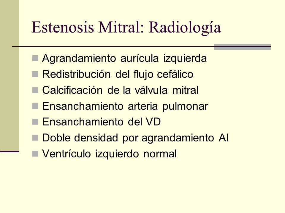 Estenosis Mitral: Radiología
