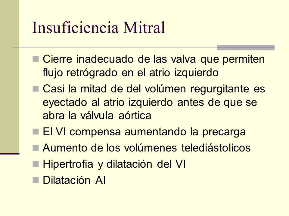 Insuficiencia Mitral Cierre inadecuado de las valva que permiten flujo retrógrado en el atrio izquierdo.