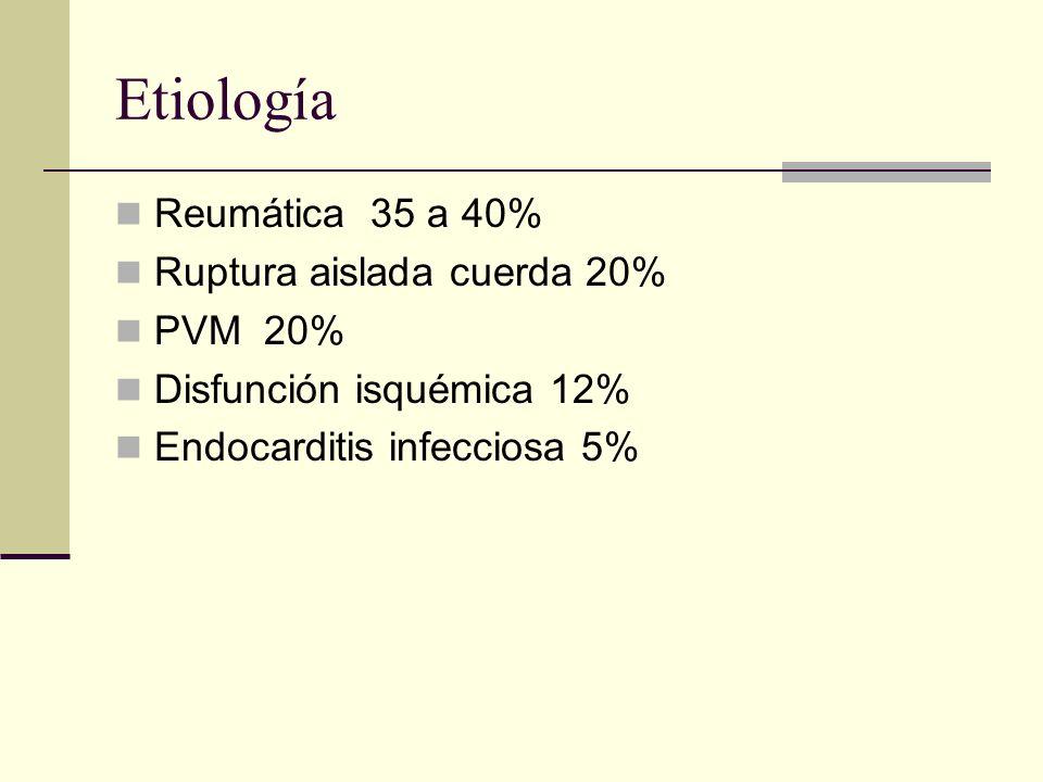 Etiología Reumática 35 a 40% Ruptura aislada cuerda 20% PVM 20%