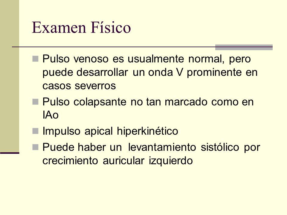 Examen Físico Pulso venoso es usualmente normal, pero puede desarrollar un onda V prominente en casos severros.