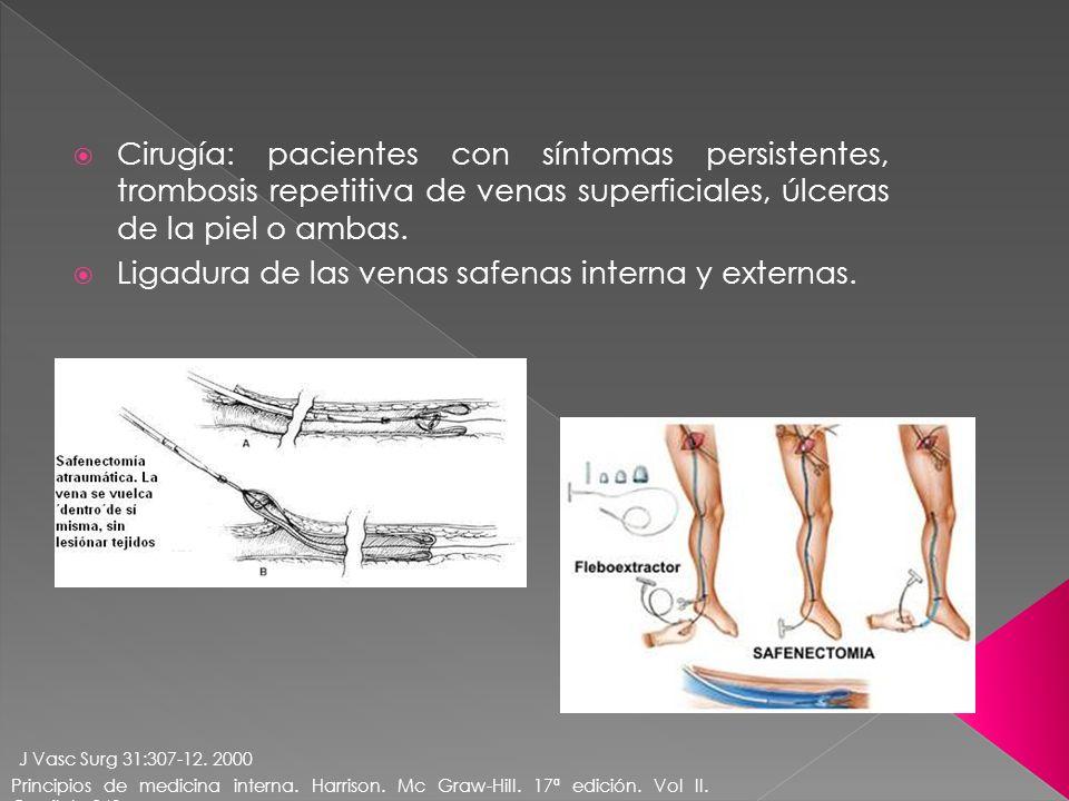 Ligadura de las venas safenas interna y externas.