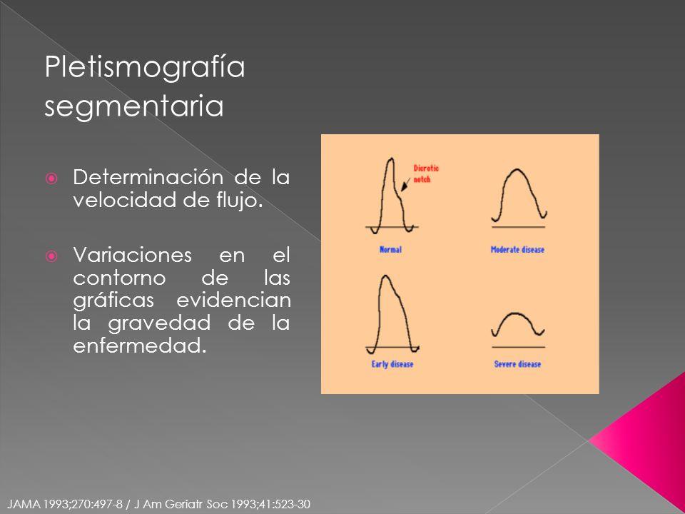 Pletismografía segmentaria Determinación de la velocidad de flujo.