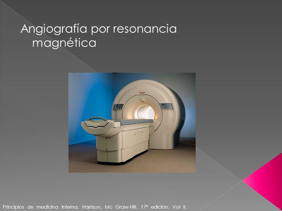 Angiografía por resonancia magnética