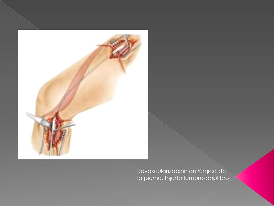Revascularización quirúrgica de