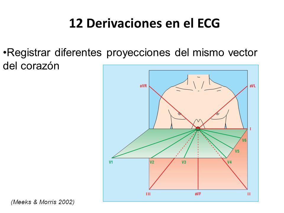 12 Derivaciones en el ECG Registrar diferentes proyecciones del mismo vector.