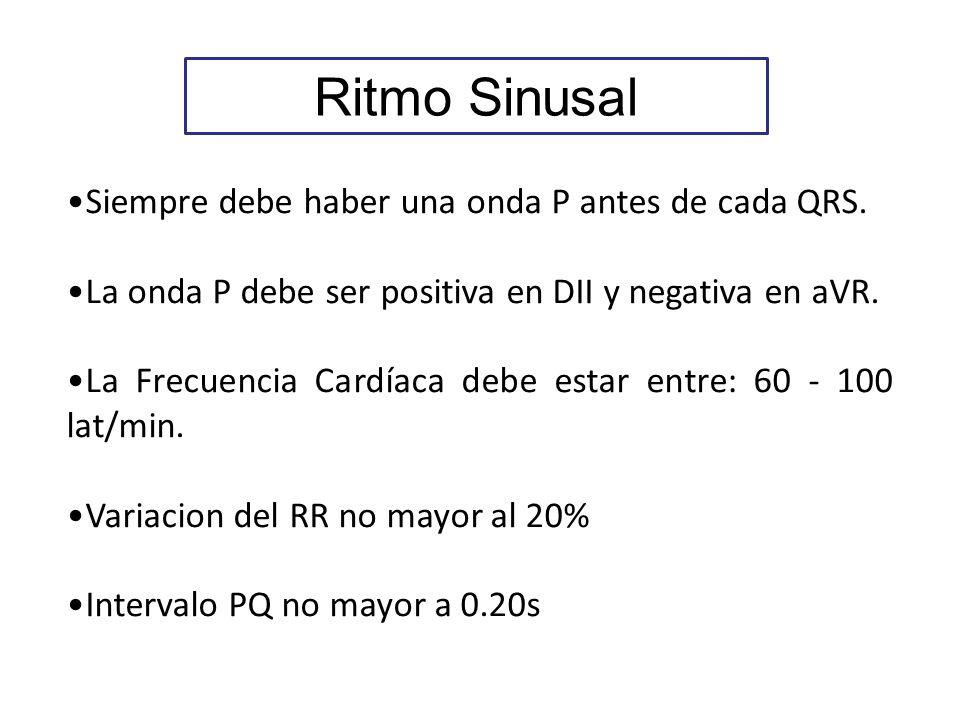 Ritmo Sinusal Siempre debe haber una onda P antes de cada QRS.