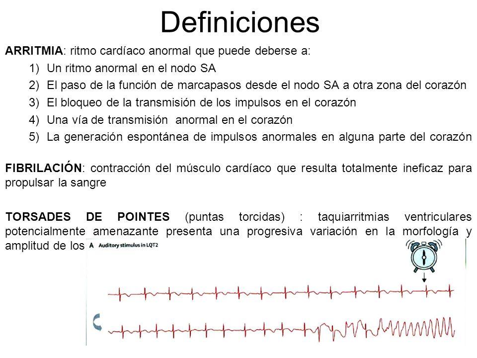 Definiciones ARRITMIA: ritmo cardíaco anormal que puede deberse a: