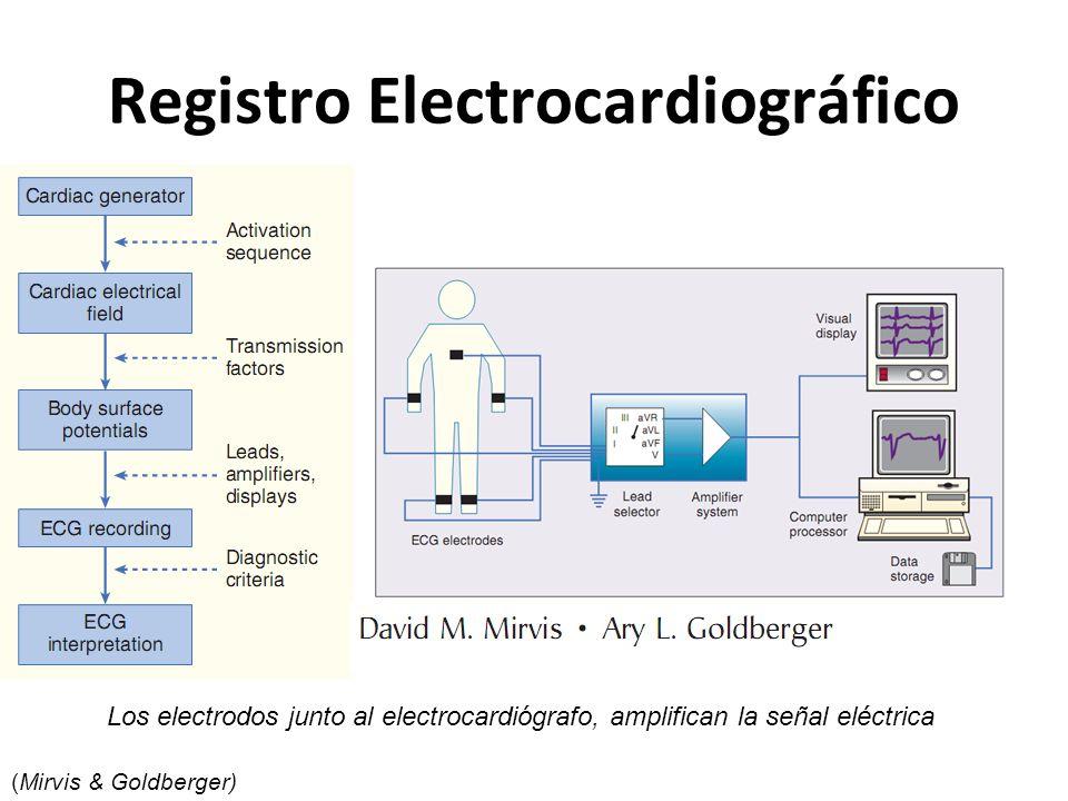 Registro Electrocardiográfico