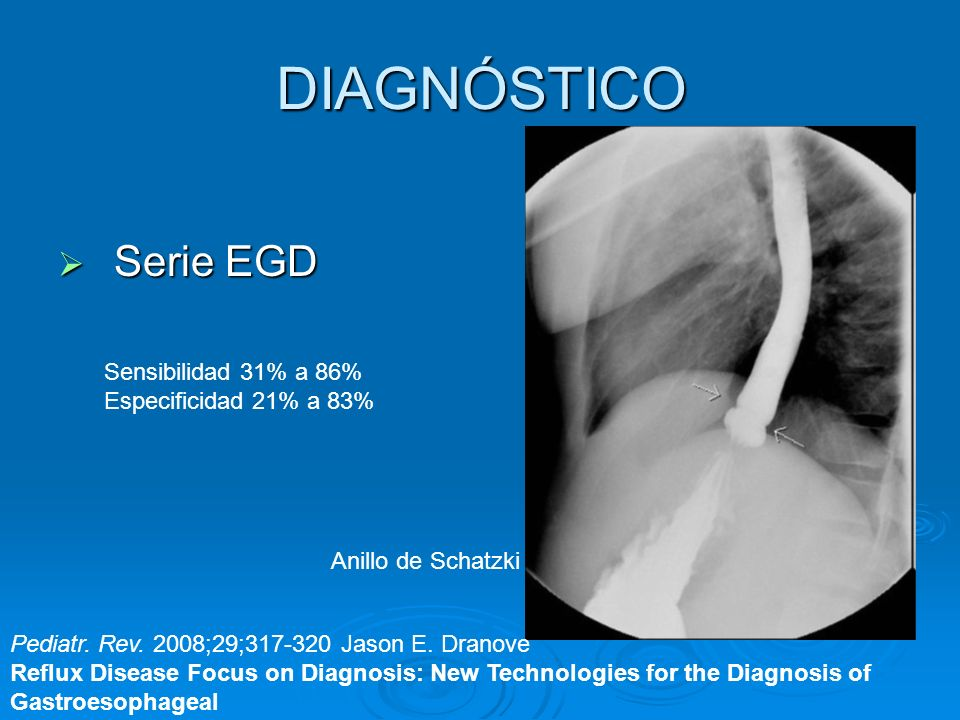 DIAGNÓSTICO Serie EGD Sensibilidad 31% a 86% Especificidad 21% a 83%