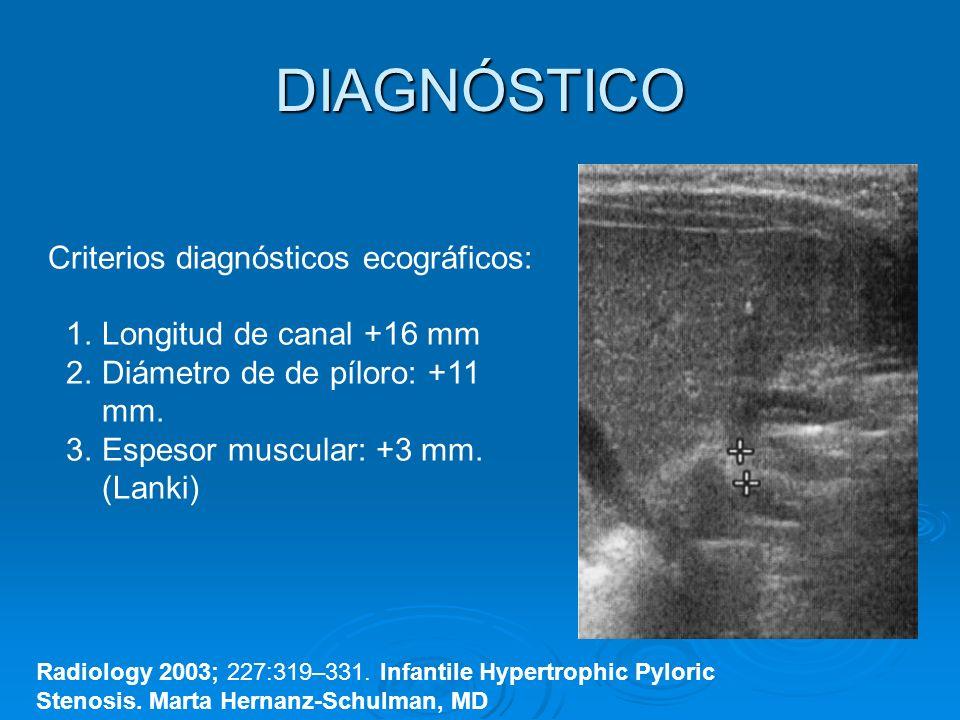 DIAGNÓSTICO Criterios diagnósticos ecográficos: