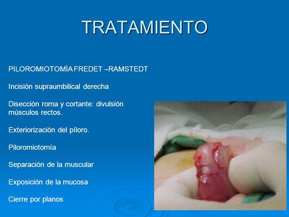 TRATAMIENTO PILOROMIOTOMÍA FREDET –RAMSTEDT