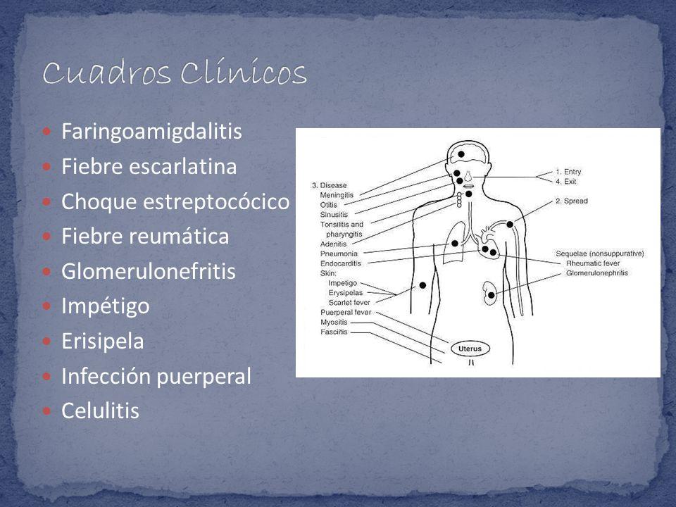 Cuadros Clínicos Faringoamigdalitis Fiebre escarlatina
