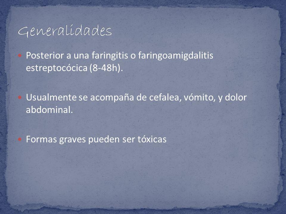 GeneralidadesPosterior a una faringitis o faringoamigdalitis estreptocócica (8-48h). Usualmente se acompaña de cefalea, vómito, y dolor abdominal.