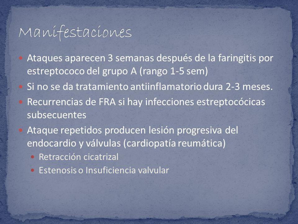Manifestaciones Ataques aparecen 3 semanas después de la faringitis por estreptococo del grupo A (rango 1-5 sem)