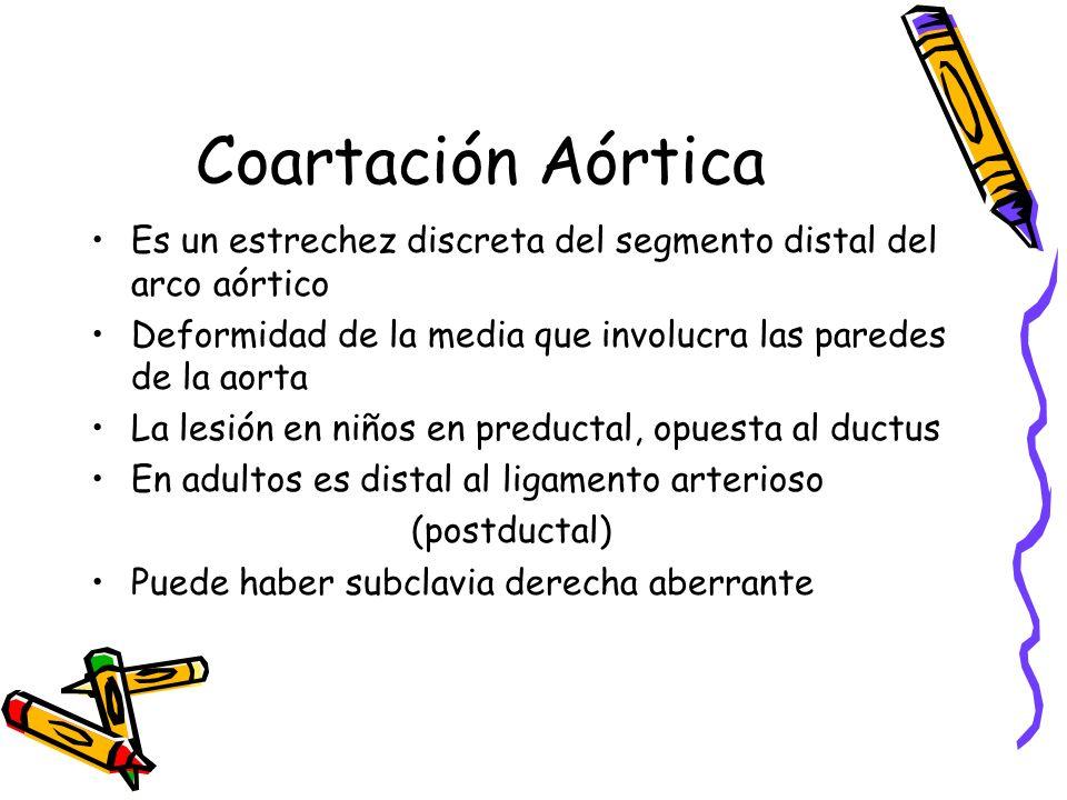 Coartación Aórtica Es un estrechez discreta del segmento distal del arco aórtico. Deformidad de la media que involucra las paredes de la aorta.