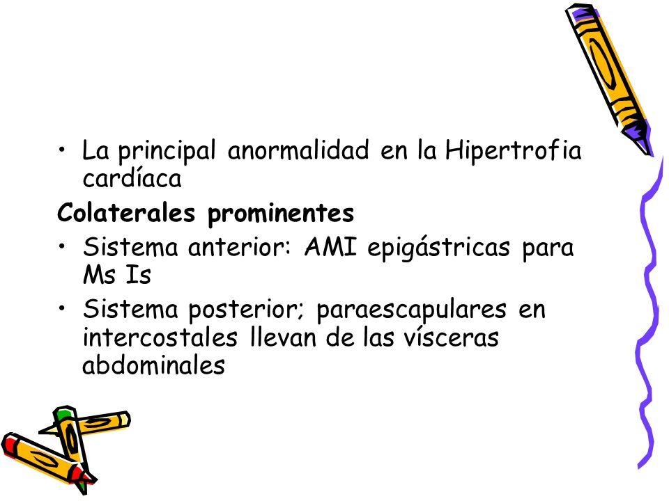 La principal anormalidad en la Hipertrofia cardíaca