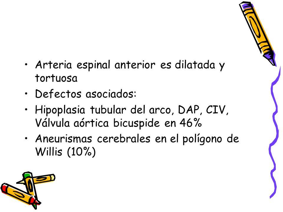 Arteria espinal anterior es dilatada y tortuosa