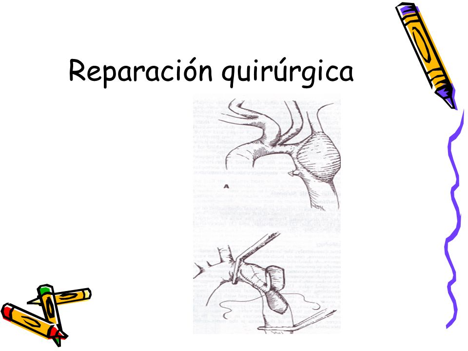 Reparación quirúrgica