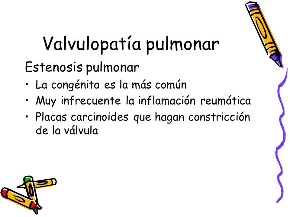 Valvulopatía pulmonar
