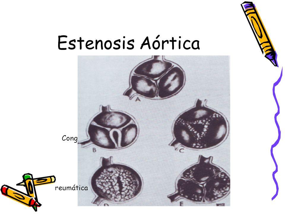 Estenosis Aórtica Cong reumática