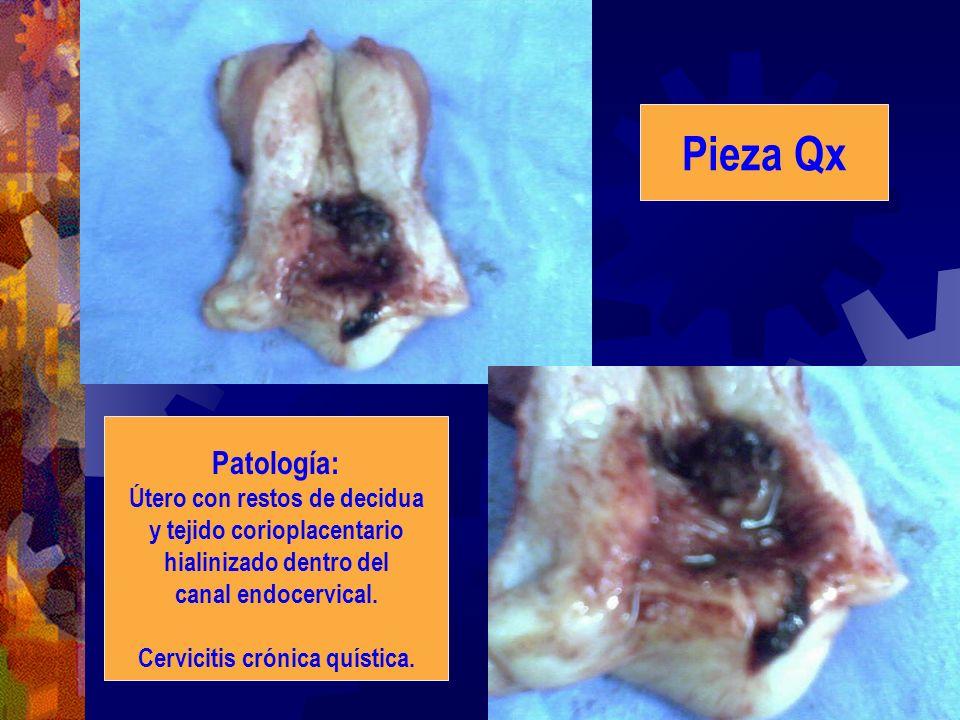 Pieza Qx Patología: Útero con restos de decidua