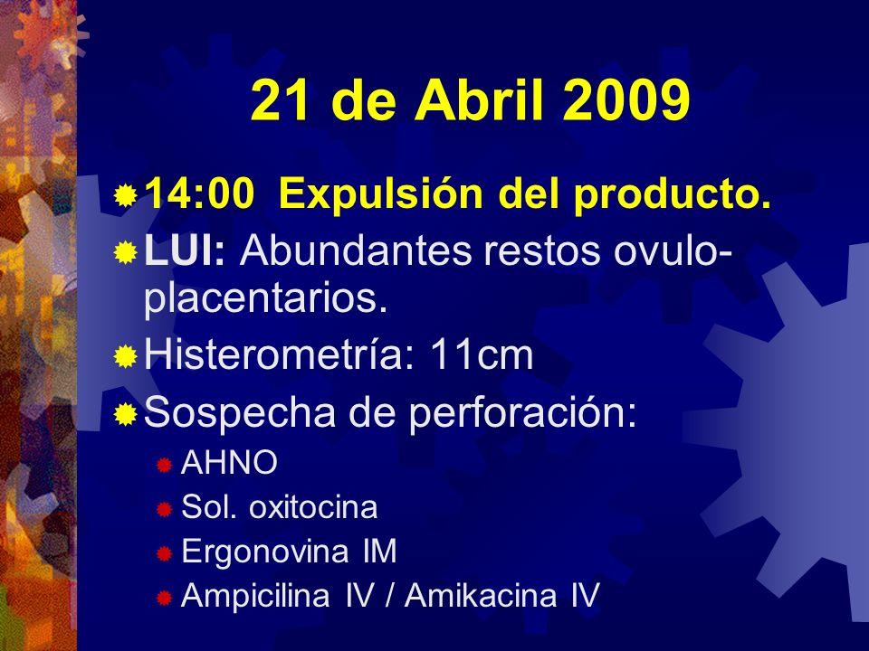 21 de Abril 2009 14:00 Expulsión del producto.